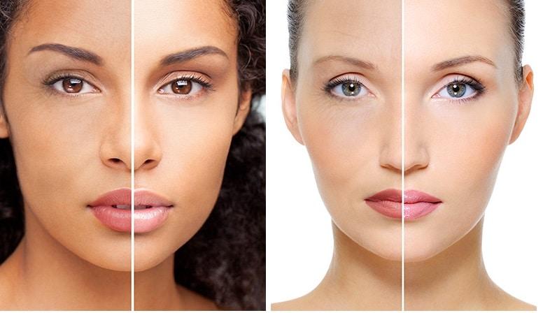 XYZ Смарт Колаген Огляд - Зменшує зморшки, лінії і в'ялої шкіри