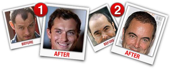 Har Vokse: Best Hair Growth Spray & Anti-Balding Supplement!