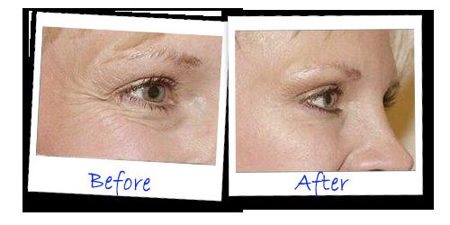 Secreto ojo 1 minuto Ascensor Antes Después - Revisión de los ojos Secretos 1 minuto Ascensor - real removedor de arrugas instantánea?
