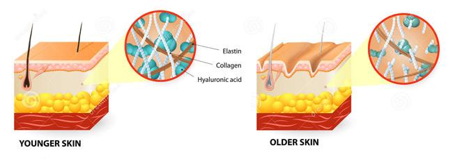 Cómo Skinception arrugas instantánea Reductor de Trabajo