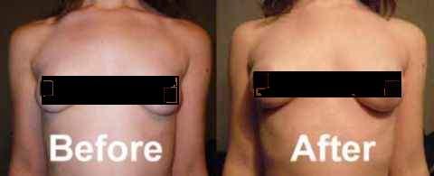 Breast Actives Comentarios 2017 - antes y después de las fotos, efectos secundarios, donde comprar