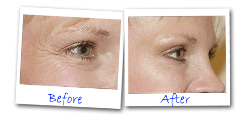 Eye Secret 1 Minute Lift Before After - Eye Secrets 1 Minute Lift Review – Real Instant Wrinkle Remover?