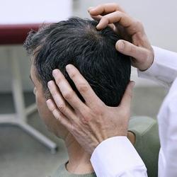 Folexin revisión - Pérdida de Fórmula Profesional adelgazamiento del cabello que funciona?